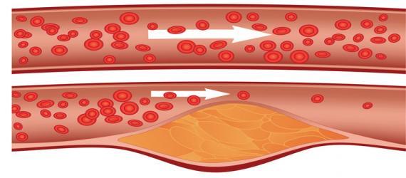 کاهش کلسترول با مصرف 11 ماده غذایی
